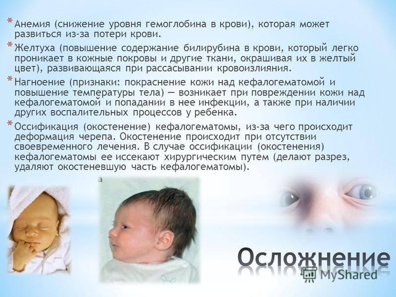 Детская желтуха – лечение, причины и последствия