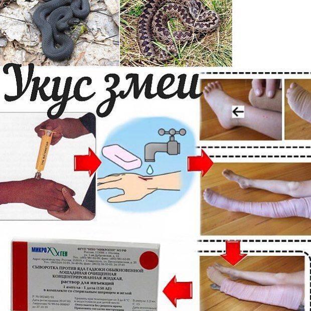 Лечение укусов ядовитых змей: противоядие   компетентно о здоровье на ilive