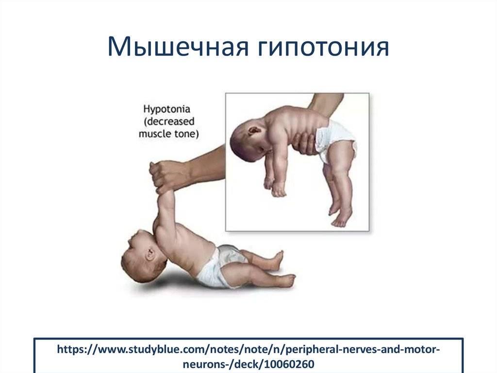 Тонус мышц у младенцев. причины возникновения и методы лечения - beautyvertebro.com