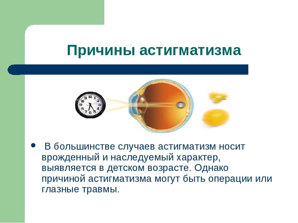 Лечение дальнозоркости у детей: как лечить детскую гиперметропию? - детская поликлиника № 7