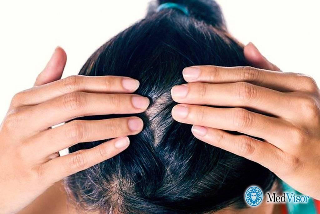 Сухость кожи головы у ребенка: симптомы и лечение - medical insider
