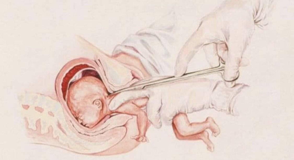 Как отходят воды у беременных? когда начнутся роды? что делать при подтекании?