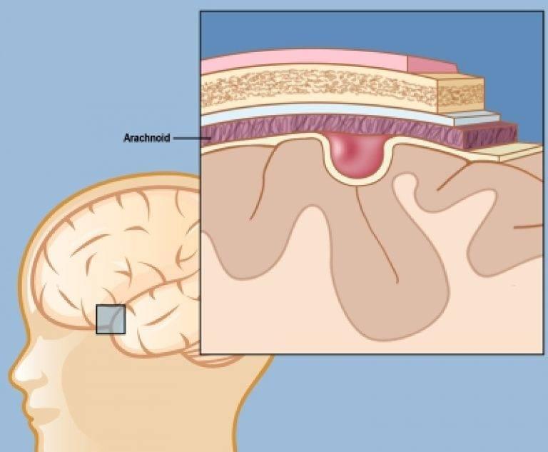 Субэпендимальная киста: причины, чем и когда опасна, диагностика, лечение, прогноз