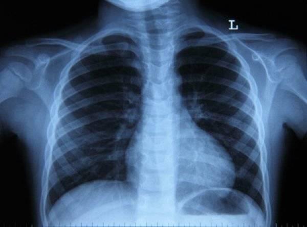 Рентген грудной клетки: особенности флюорографии