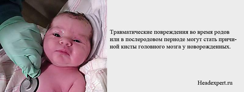 Кисты в голове: настоящие и мнимые | милосердие.ru