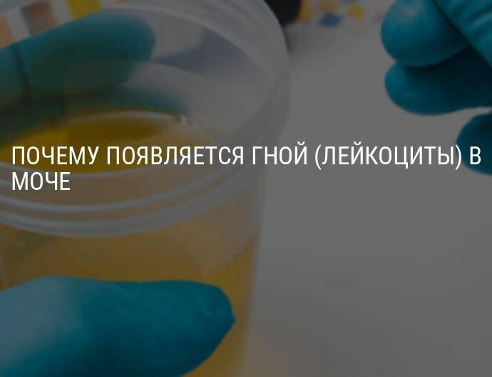 Кровь в сперме (гемоспермия): причины, диагностика, лечение — напоправку – напоправку