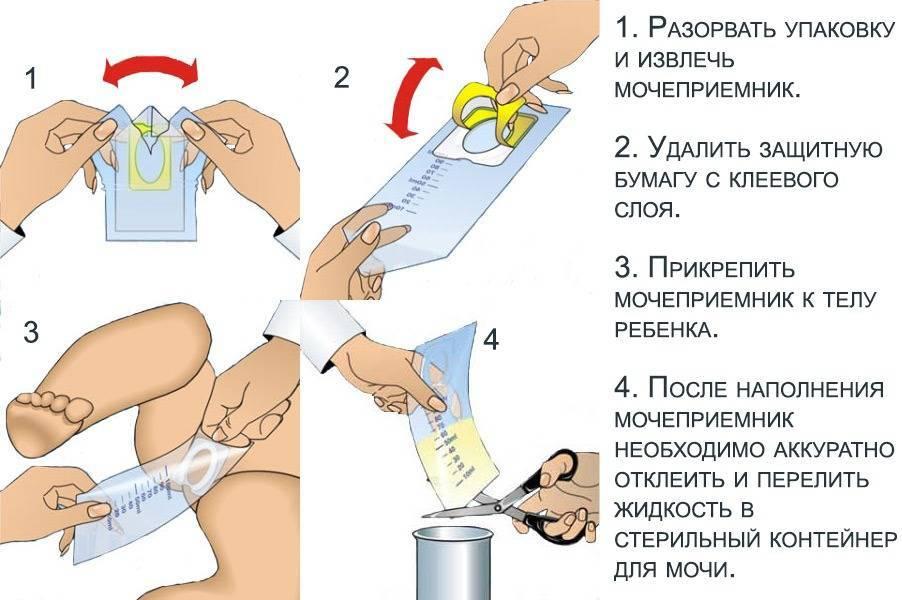 Как правильно собрать анализ мочи у грудничка?