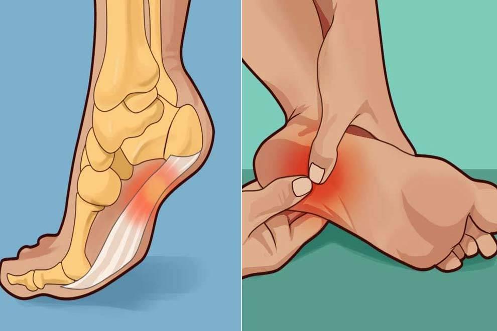 Почему болят ноги у ребенка | сеть клиник «здравствуй!»