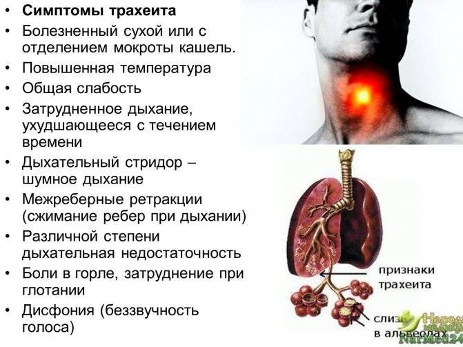 Трахеит у взрослых | eurolab | пульмонология