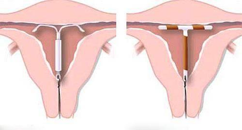 Установка внутриматочной спирали (вмс)
