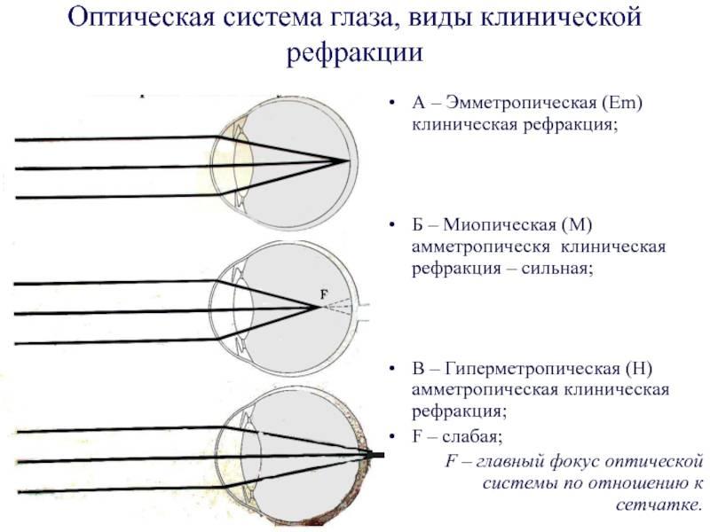 Дальнозоркий астигматизм у детей, лечение сложного дальнозоркого астигматизма в fedorovmedcenter