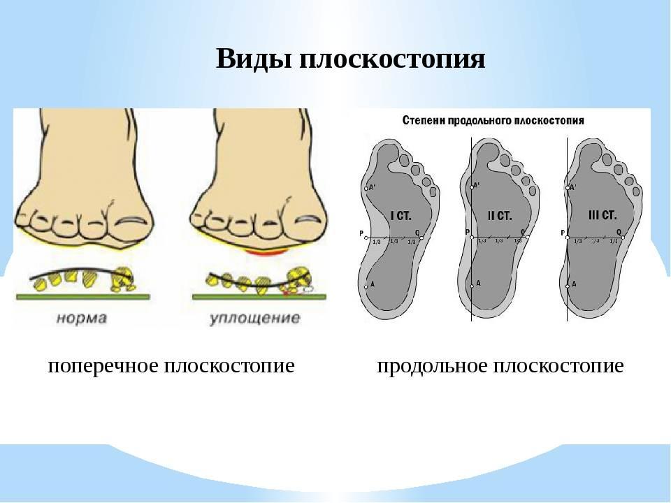 Что вызывает и как исправить деформацию стопы у ребенка?