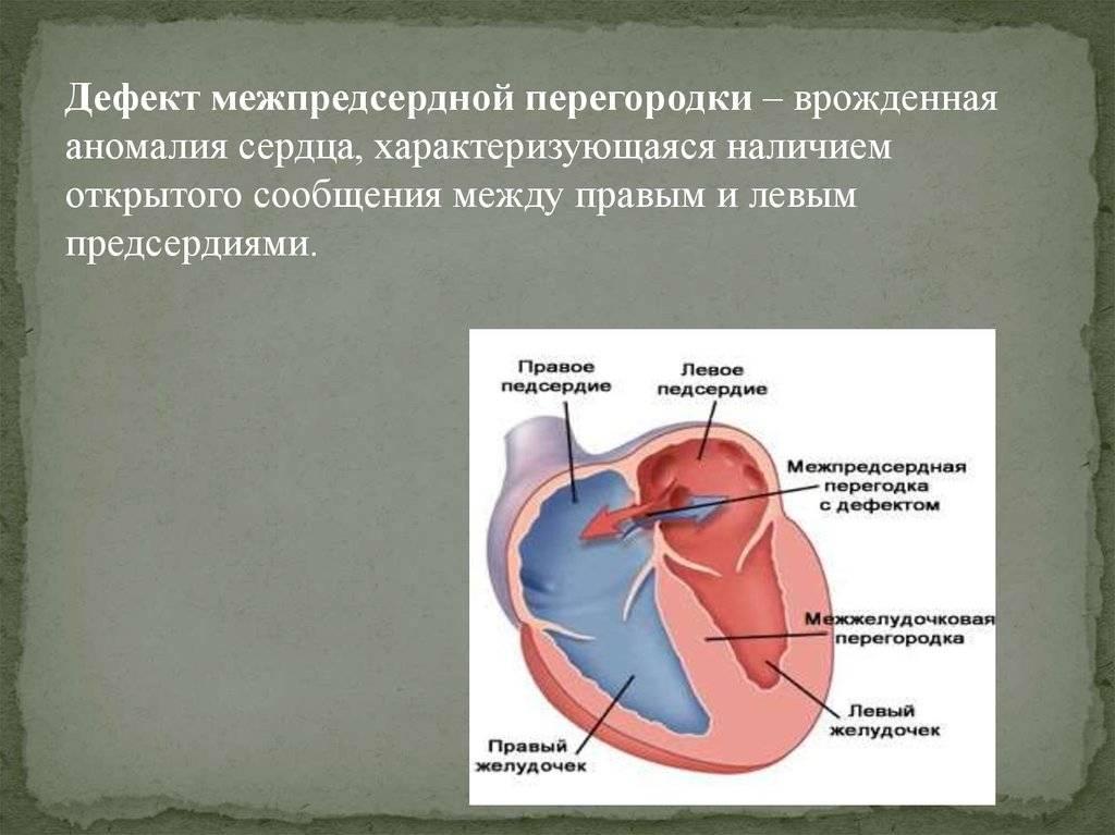 Пороки сердца у детей: аневризма межпредсердной перегородки