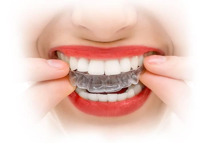 Выравнивание зубов: основные виды   компетентно о здоровье на ilive