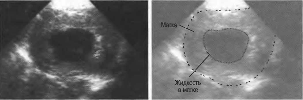 Ложная беременность (псевдобеременность, псевдоциез): диагностика и лечение