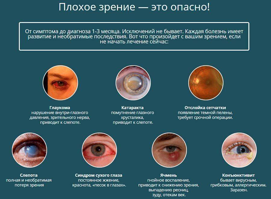 Ячмень на глазу: как и чем лечить ячмень на глазу, капли, мази