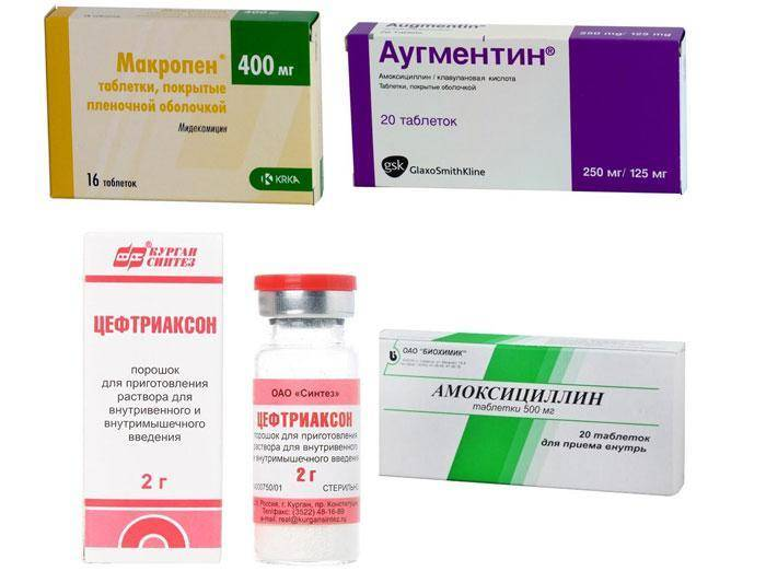Стоит ли давать антибиотики при ангине? - лор клиника №1