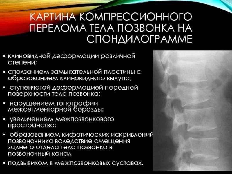 Искусственная коррекция движений при компрессионных переломах позвоночника