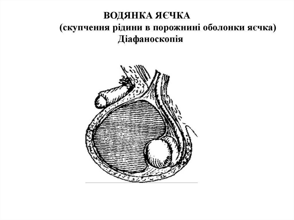 Гидроцеле за 28000 р. лечение ✚ двустороннего гидроцеле умеренного