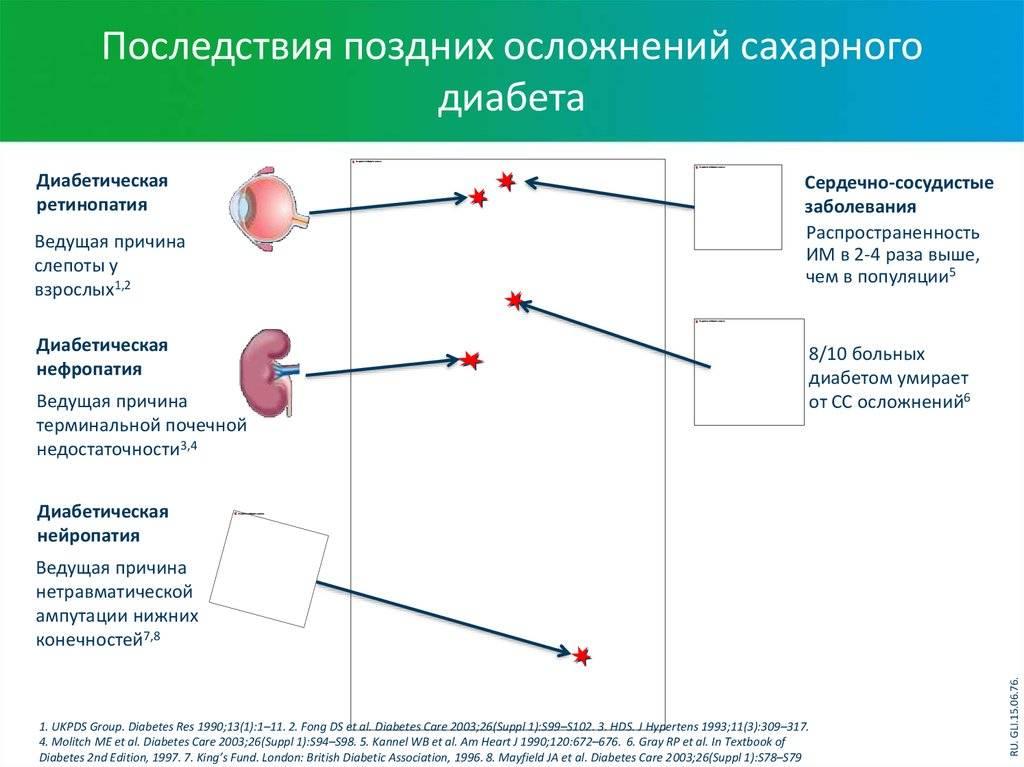 Сахарный диабет. этиология, патогенез, клиника, диагностика, лечение