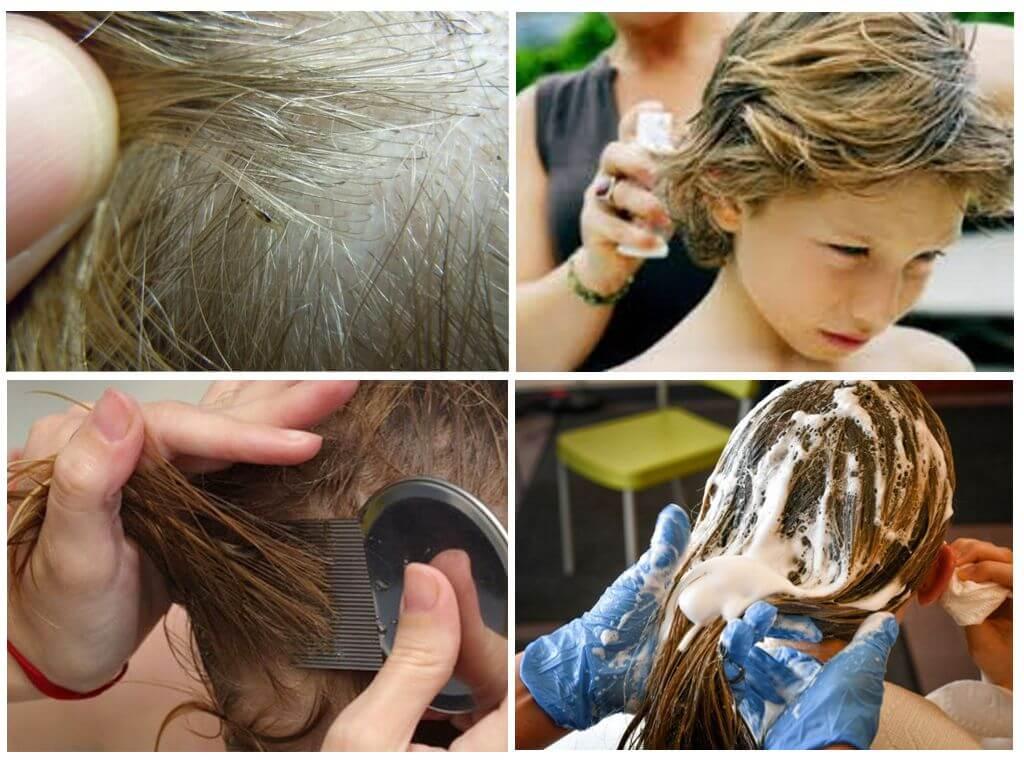 Рейтинг топ 5 лучших средств от вшей и гнид для детей: шампуни и спреи, народные методы, отзывы