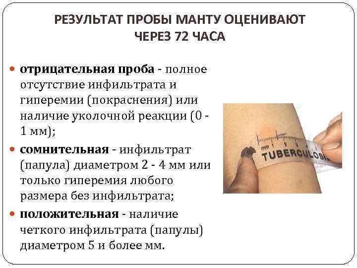 Манту прививка: детям в год и старше, расшифровка реакции