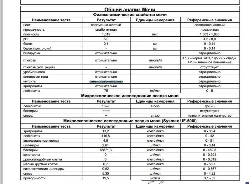 Общий анализ мочи с микроскопией осадка: исследования в лаборатории kdlmed