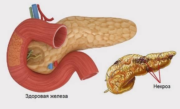 Панкреатит: причины, симптомы, методы диагностики и лечения панкреатита.
