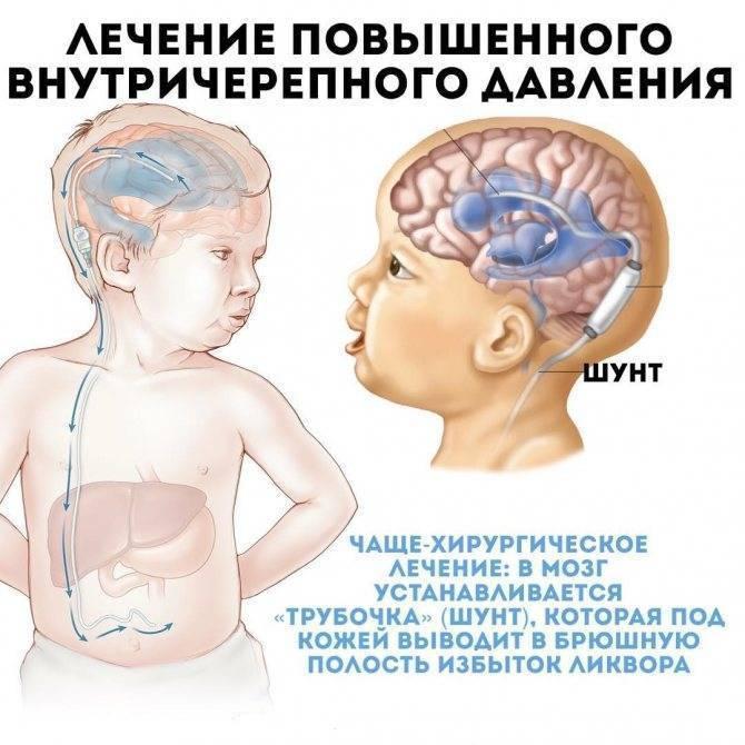 Повышенное внутричерепное давление: признаки, причины, как снизить