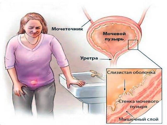 Лучевой цистит у женщин: диагностика, симптомы и лечение в европейской клинике