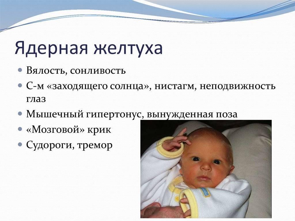 Исправление косоглазия у детей до года - энциклопедия ochkov.net