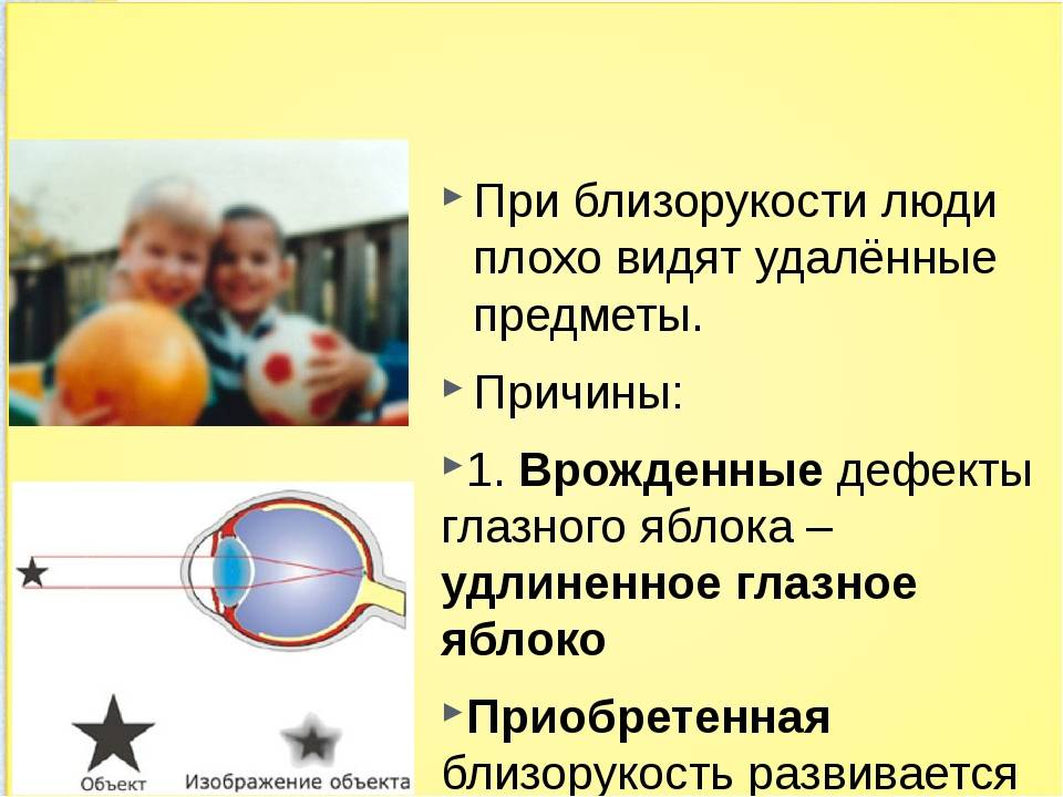 Дальнозоркость у детей