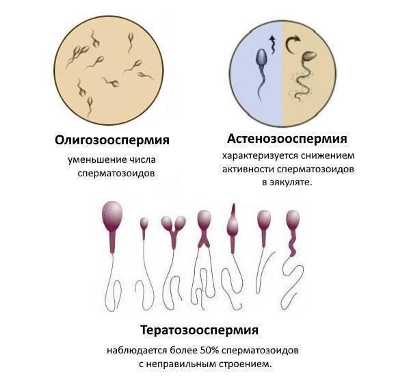 Лечение бесплодия