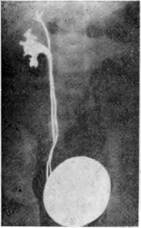 Пузырно-мочеточниковый рефлюкс » библиотека врача