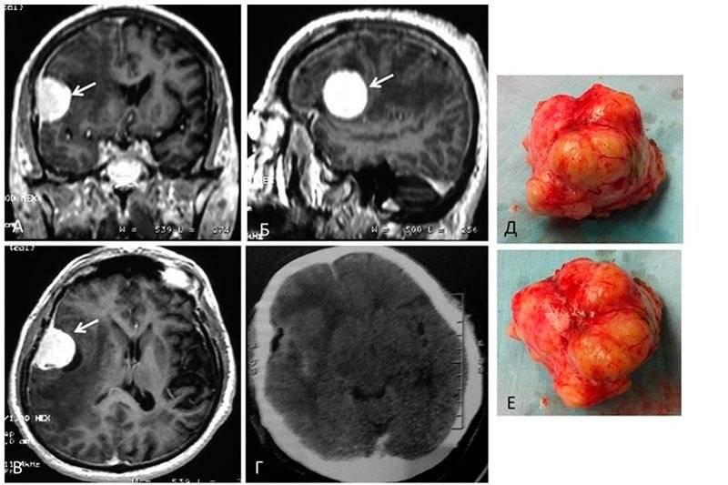 Обзор онкологических заболеваний менингиомы