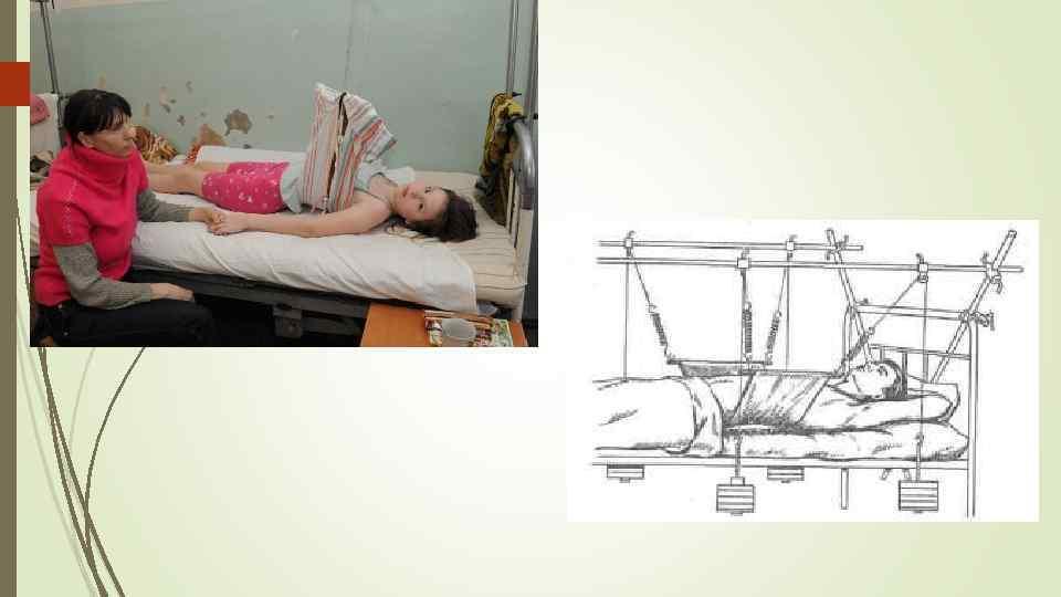 Компрессионный перелом позвоночника у детей: симптомы, лечение