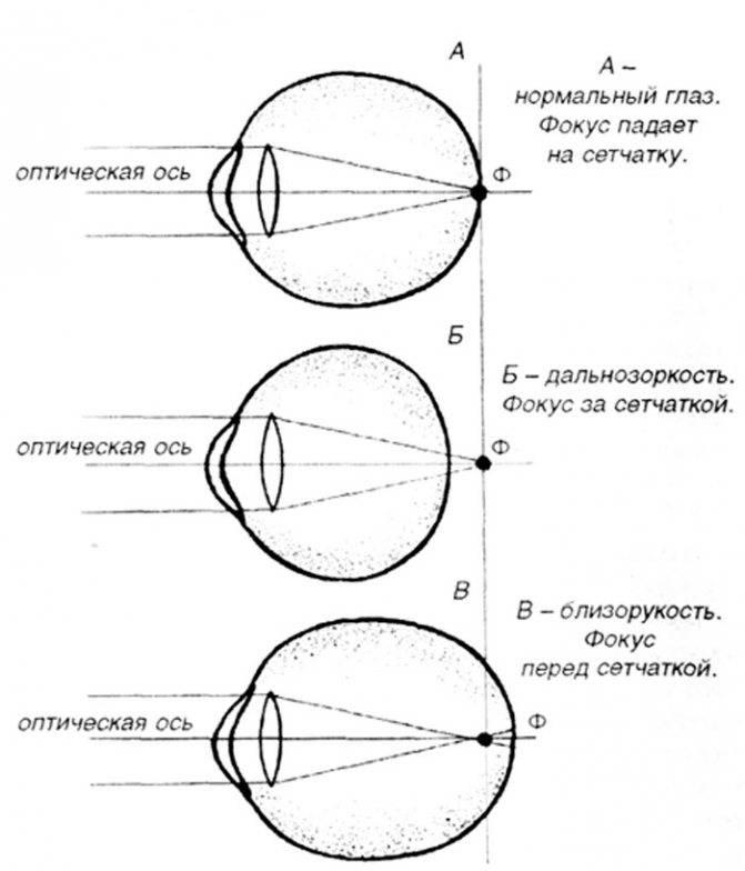 Лечение дальнозоркости (гиперметропии)