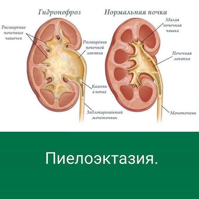 Симптомы и лечение пиелоэктазии почек