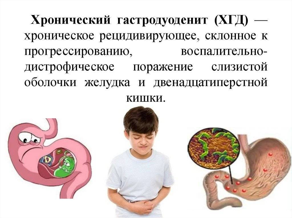 Острый и хронический простатит: признаки, симптомы и лечение