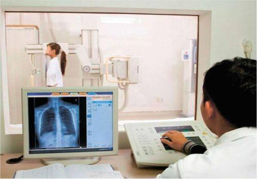 Что показывает рентгенография органов грудной клетки, и как к ней подготовиться?