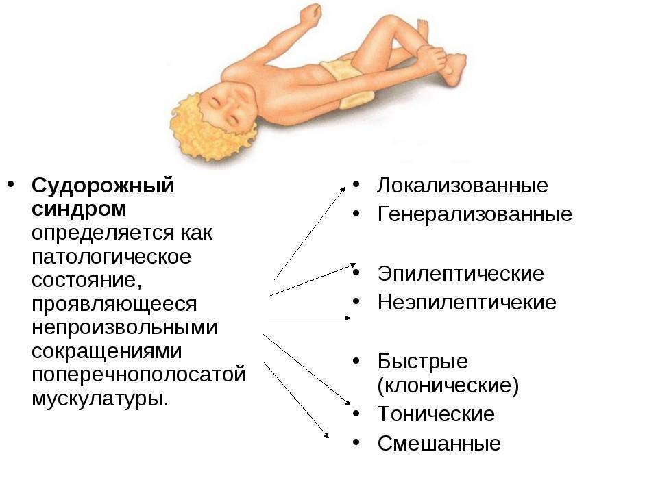 Детская эпилептология - что нужно знать.