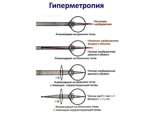 Виды и особенности лечения миопического астигматизма