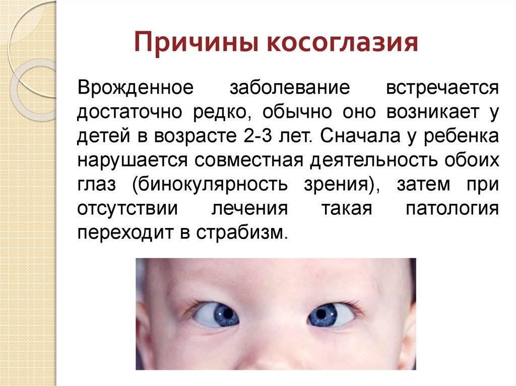 Косоглазие у новорождённых — патология или норма?