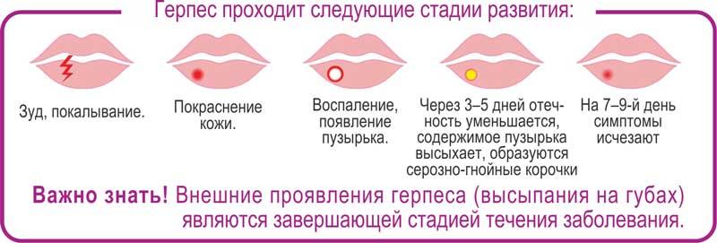 Герпетический стоматит: лечение