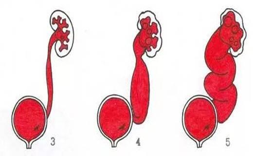 Пузырно-мочеточниковый рефлюкс у детей | компетентно о здоровье на ilive