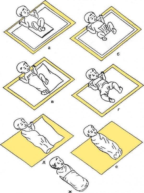 Широкое пеленание при дисплазии тазобедренных суставов   активная мама