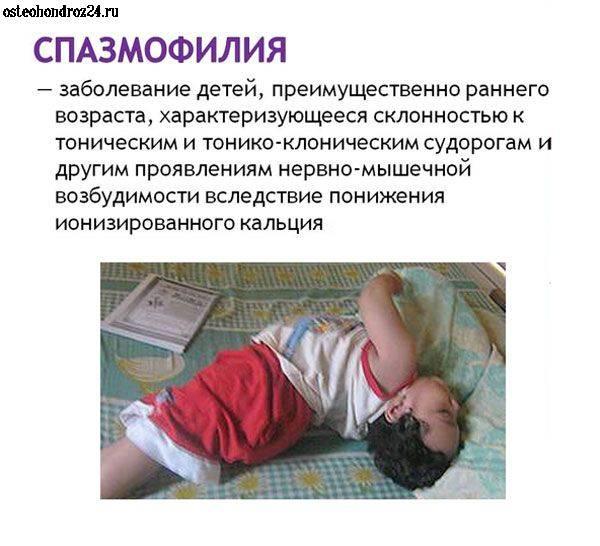 У ребенка судороги на фоне температуры: почему они возникают?