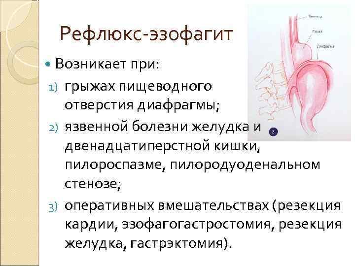Рефлюкс эзофагит и изжога