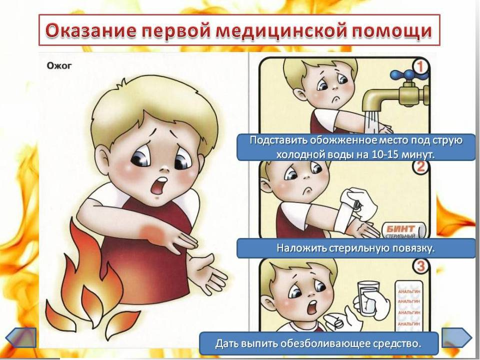 Что делать при ожоге от мази?