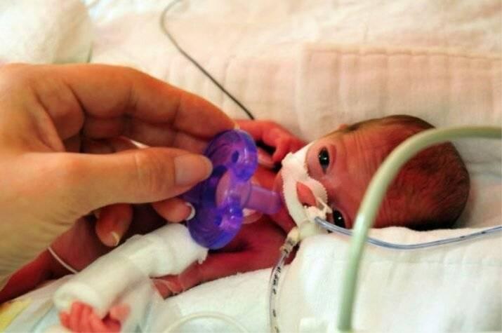 Чудо-крошки: легко ли выходить глубоко недоношенного ребенка?
